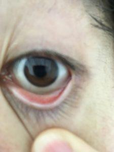 猫アレルギー症状眼球正常時